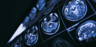 Brain Work hears fears